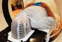 Rádioterapia